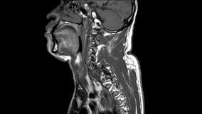 Mri de la historia cervical de la espina dorsal: un varón de 57 años, presentado con la historia del total del accidente del vehí metrajes