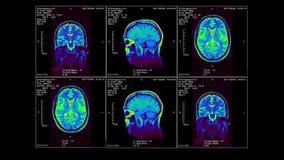 MRI del cerebro en tres dimensiones, lazo video, alfa-canal almacen de metraje de vídeo
