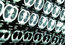 MRI del cervello umano Immagine Stock