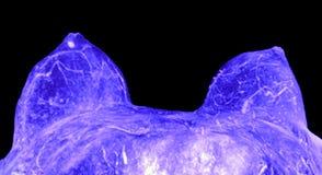MRI del seno immagine stock