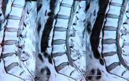 MRI del tratto lombare della colonna vertebrale fotografie stock