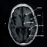 MRI des Gehirns Stockfotografie