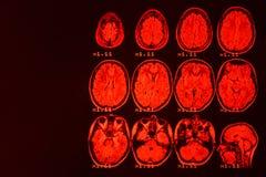 MRI des Gehirns auf einem schwarzen Hintergrund mit roter Hintergrundbeleuchtung stockfotos