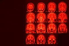 MRI des Gehirns auf einem schwarzen Hintergrund mit roter Hintergrundbeleuchtung Medizinischer Hintergrund stockbilder