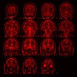 MRI des Gehirns auf einem schwarzen Hintergrund mit roter Hintergrundbeleuchtung stockbild