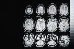 MRI des Gehirns einer gesunden Person auf einem schwarzen Hintergrund mit grauer Hintergrundbeleuchtung lizenzfreie stockbilder