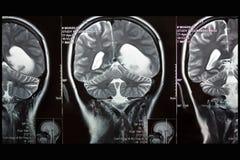 MRI des Gehirns, Tumor der linken Hemisphäre, Kranzflugzeug Stockfotos