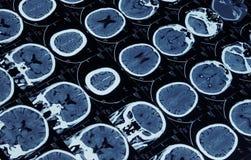 MRI des Gehirns und des Schädels Lizenzfreies Stockfoto