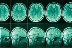 MRI des Kopfes und des Gehirns einer Person stockfotografie