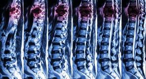 MRI des lumbalen u. Brust- Dorns: zeigen Sie Bruch des Brust- Dorns und drücken Sie Rückenmark zusammen (Myelopathie) Lizenzfreie Stockfotografie