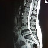 Mri di stenosi del tratto lombare della colonna vertebrale fotografie stock libere da diritti