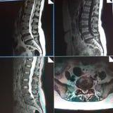 Mri di stenosi del tratto lombare della colonna vertebrale Fotografie Stock