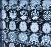 MRI diagnostics of human brain Stock Photo