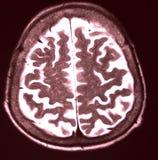 MRI do cérebro fotografia de stock royalty free