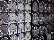 MRI do cérebro Fotos de Stock
