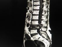 MRI Dolędźwiowy kręgosłup fotografia stock