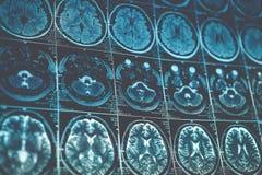 MRI eller bild för magnetisk resonans av huvudet och hjärnbildläsningen Övre sikt för slut som tonas Royaltyfria Foton