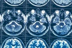 MRI eller bild för magnetisk resonans av huvudet och hjärnbildläsningen royaltyfri bild