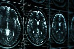 MRI eller bild för magnetisk resonans av huvudet och hjärnbildläsningen Slapp fokus royaltyfri foto