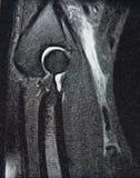 Mri för diagnostisk radiologi för bicepssenareva Fotografering för Bildbyråer