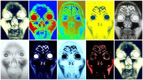 Mri face colorful collage. There are images in the form of colorful collage to diagnose, with the help of MRI, pathology of the face .These are the diseases or Stock Images