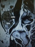 Mri  fibroid necrotic  uterus  pathology exam. For women regular check up  of uterus is very important , in very short period of time changes can be dramatic or Stock Images
