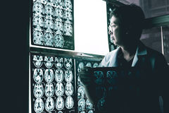 Dementia brain on MRI. This MRI film indicated to brain atrophy was diagnostic to be Dementia Royalty Free Stock Image