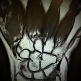 Mri fracture bones wrist exam. The severe pain in the arm after trauma needs MRI radiological examination , which can reveal pathology like this, fracture of the stock photo