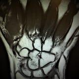 Mri fracture bones wrist exam stock photo