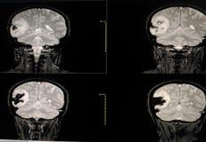 MRI-Gehirn Stockfotografie