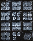 MRI Gehirn Lizenzfreie Stockfotos