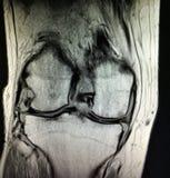 Mri grave de synovitis de rhumatisme articulaire de genou photos libres de droits