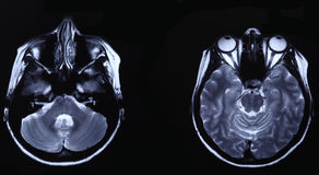 MRI of head Royalty Free Stock Image