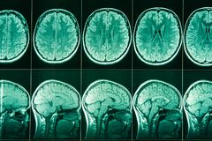 MRI of the head and brain of a person. stock photography