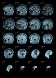 MRI Head Scan Side view Royalty Free Stock Images