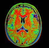Mri hjärnslaglängd Arkivfoton