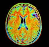 Mri hjärnslaglängd arkivbild