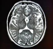 Mri hjärnslaglängd Royaltyfria Bilder