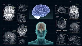 MRI of the human brain in the different projections