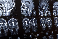 MRI of human brain Stock Photography