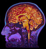 MRI Image Of Head Showing Brain. On Black Background Royalty Free Stock Photos