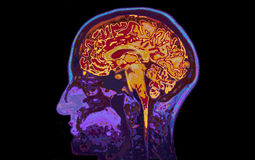 MRI Image Of Head Showing Brain. On Black Background Stock Photos