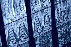MRI image of human spine Royalty Free Stock Images