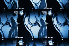 MRI image of knee Royalty Free Stock Images