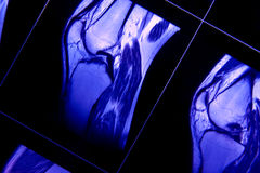 MRI of knee Royalty Free Stock Photography