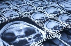 MRI of knee - top view Stock Photos