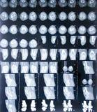 MRI Knie Lizenzfreies Stockbild