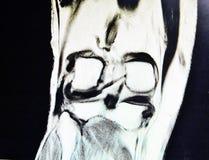 Mri lateral meniscus  tear  pathology Royalty Free Stock Photos