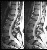 Mri of lumbar spine in sagittal plane Royalty Free Stock Photos