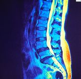 Mri of  lumbar spine stenosis Stock Photo